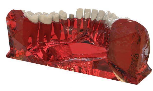 Les différentes étapes de la pose des implants dentaires