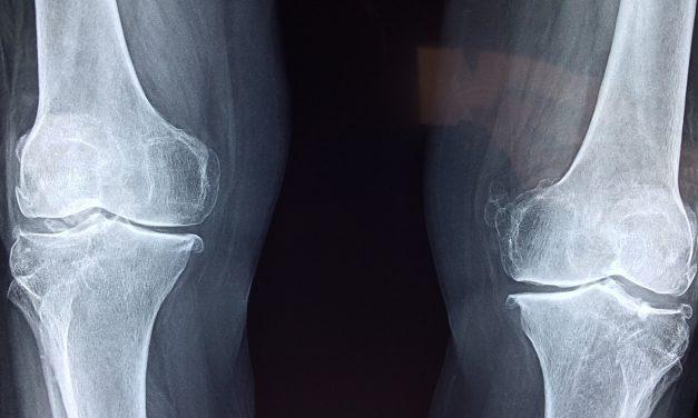 Que faire de ses vieilles radiographies ?